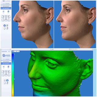 Third Dimension Application of Rhinoplasty