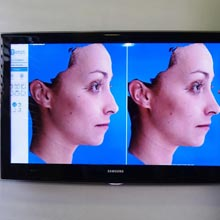 Third Dimension Technology for Rhinoplasty
