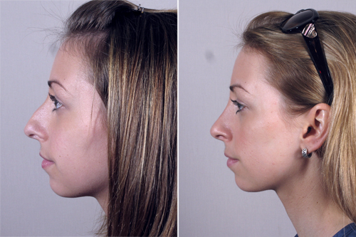 Before After Closed Rhinoplasty