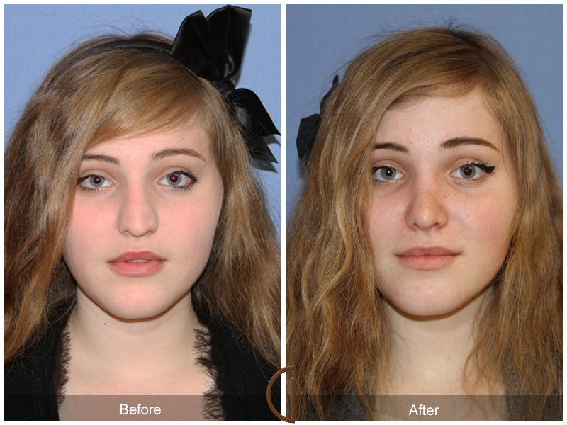 Before and After Nose Job Rhinoplasty