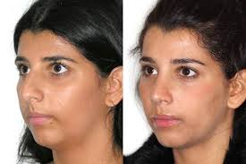 Before and after open nose job surgery
