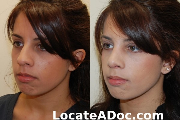 Nose Job (Rhinoplasty) After Image