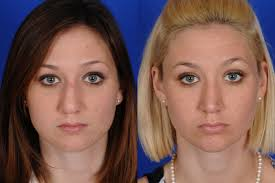 Open Rhinoplasty After Results