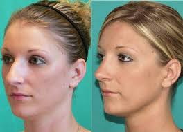 Open Rhinoplasty