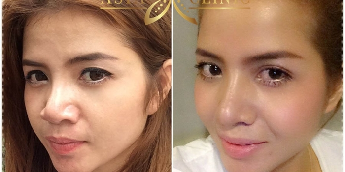 Revision Rhinoplasty Before & After