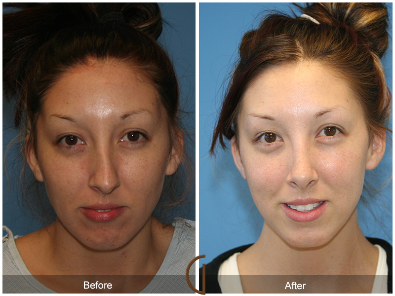 Rhinoplasty After Result
