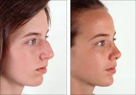 Rhinoplasty Surgery After Photo