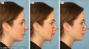 Types of Rhinoplasty (4)