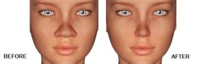 Functional Rhinoplasty (10)