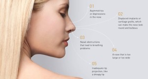Revision Rhinoplasty Reasons (1)