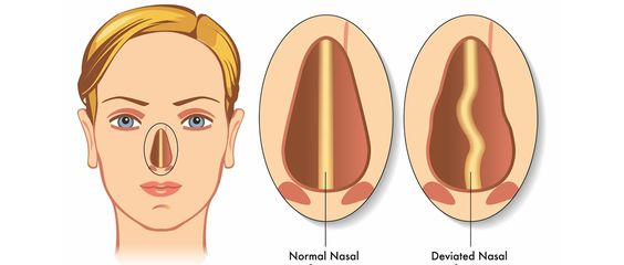 septoplasty_surgery-14