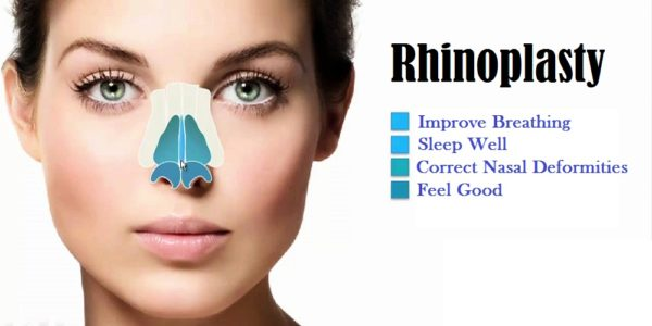 Benefits of rhinoplasty on health and life quality