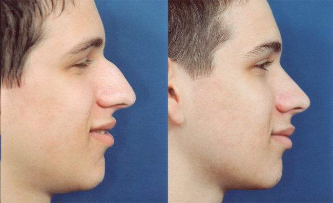 Male Nose Job Best Rhinoplasty. Npk Construction Equipment Digital Tv Package. Richmond Auto Repair Houston. Price Of Dental Implant Sql Server Bigint Size. Breast Cancer Singapore Save Documents Online. How To Create A Web Site Bullard Self Storage. Vermont College Of Cosmetology. Yahoo Domain Registration Coupon. Garage Door Repair Kingwood Tx
