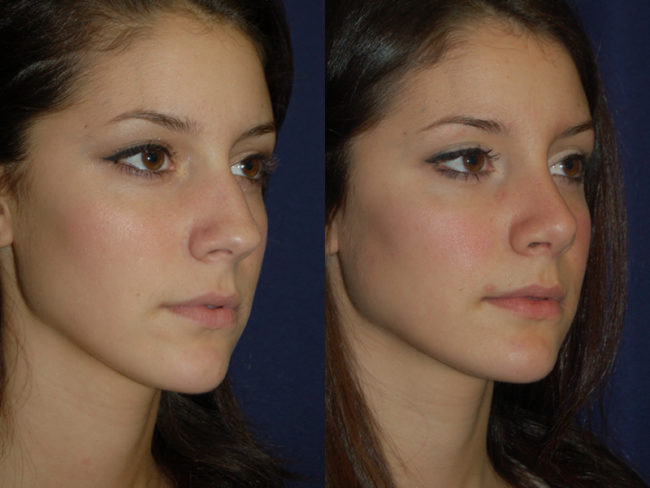 Septoplasty And Rhinoplasty Together Cost