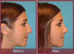 Best Rhinoplasty. How Can We Reduce The National Debt. Basics Of Inventory Management. Quickbooks Online Print Checks. Essential Thrombocytopenia Treatment. Sex And Erectile Dysfunction Lap Band Port. Esthetician School Seattle Fix Basement Leaks. Security Camera Solutions Google Php Hosting. How Do You Create A Domain Ocean Pest Control