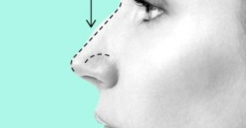 Nose Grow After Rhinoplasty