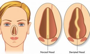 Septoplasty Surgery