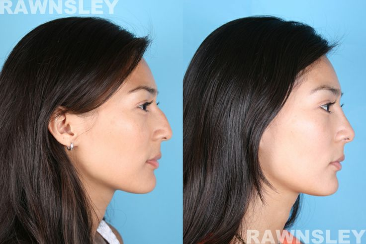 24 year old women nose job before and after