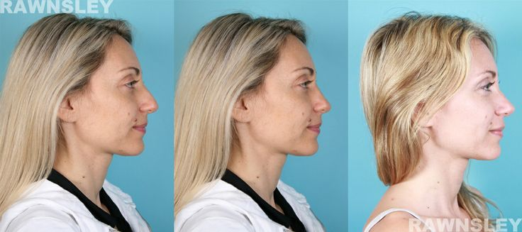 29 year old Italian patient nose job before and after