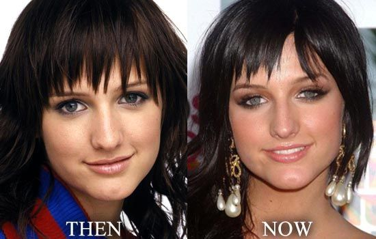 Ashlee Simpson Nose Job Then and Now