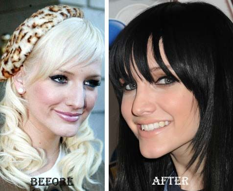 Ashley Simpson did a nose job to correct the hump on her nose bridge