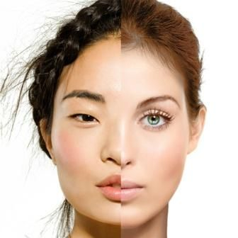 Asian Nose Job Surgery makes a big difference on face