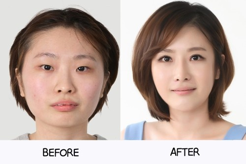 Asian Nose Job with different facial changes