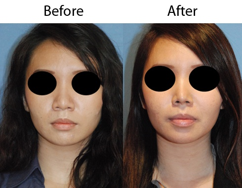 Asian Rhinoplasty After Nasal Nose Tip Refinement