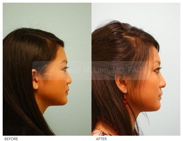 Asian Rhinoplasty Before And After Side Profile