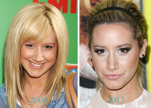 At the age of 22, Tisdale claimed that the first rhinoplasty was just for a medical