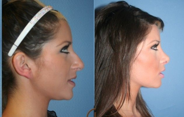 What does a chin implant look like