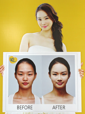 Before and After Asian Nose Job