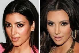 Before and after Nose job surgery