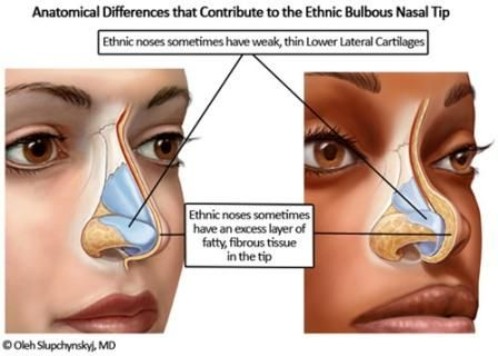 Before and after nose job illustration