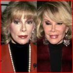 Joan Rivers Bad nose Job before and after