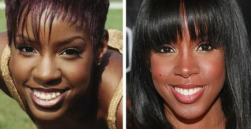 Kelly Rowland Nose Job Before & After