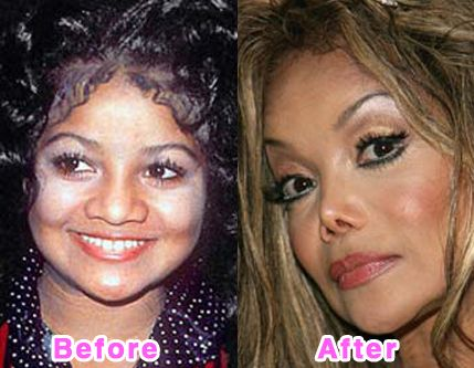 LaToya bad nose job before and after