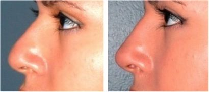 Non-Surgical Nose Job using dermal fillers