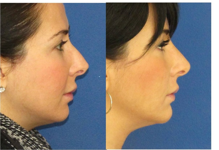 Non-surgical nose job and chin augmentation with filler