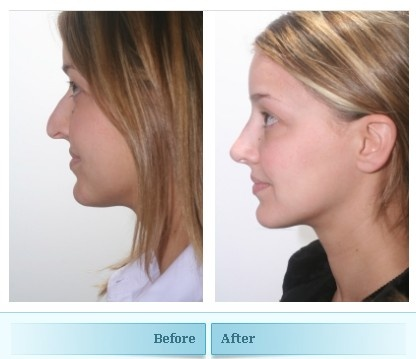 Nose Job with Excellent result with dramatic overall improvement to young womens appearance.