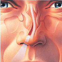 Nose Reshaping Costs