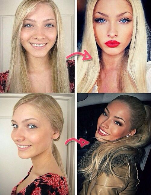 Nose job surgery before and after
