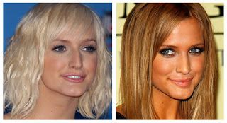 Plastic Surgery Before And After; Ashlee Simpson Nose Job