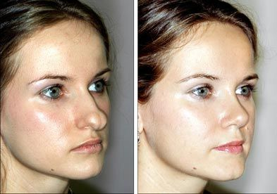Rhinoplasty surgery before and after
