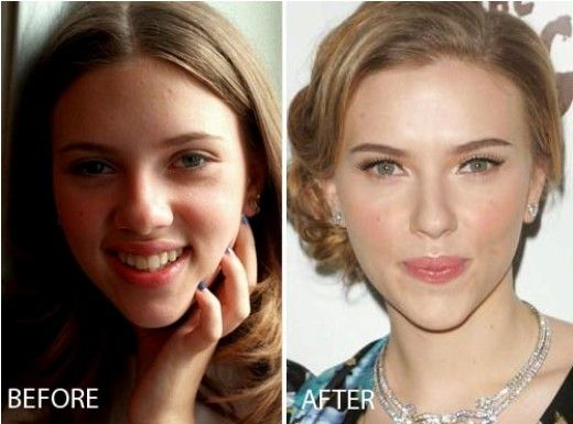 Scarlett Johansson Nose Job Before and After