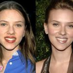 Scarlett Johansson before and after nose job