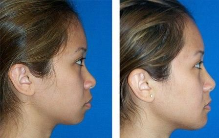 Side View of Asian Nose Before and After Rhiniplasty or Asian Nose Job