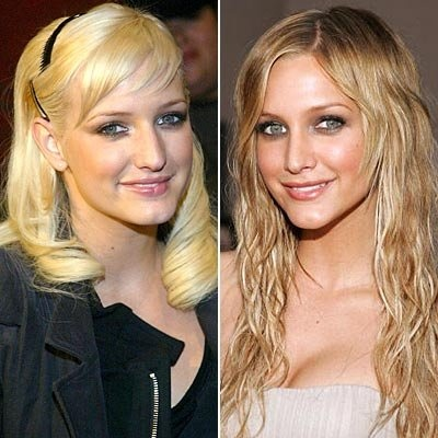 ashlee simpson's nose job before and after