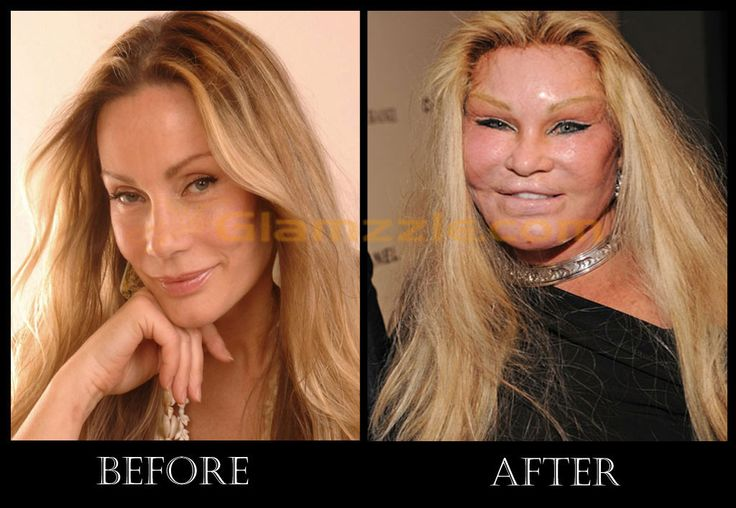 jocelyn wildenstein, before and after nose job plasticsurgery