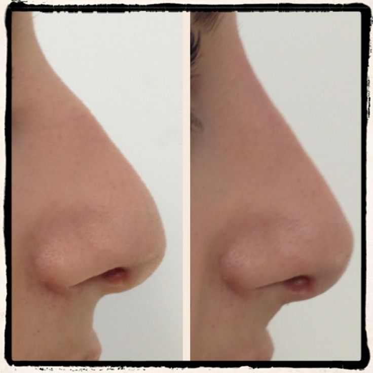 little for the arched nose job before and after